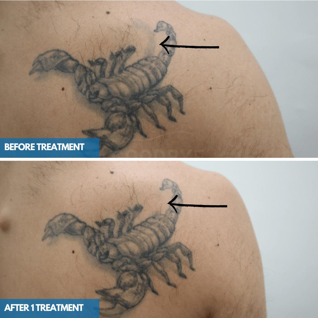 Laser tattoo removal progress photo of a black ink Scorpio tattoo