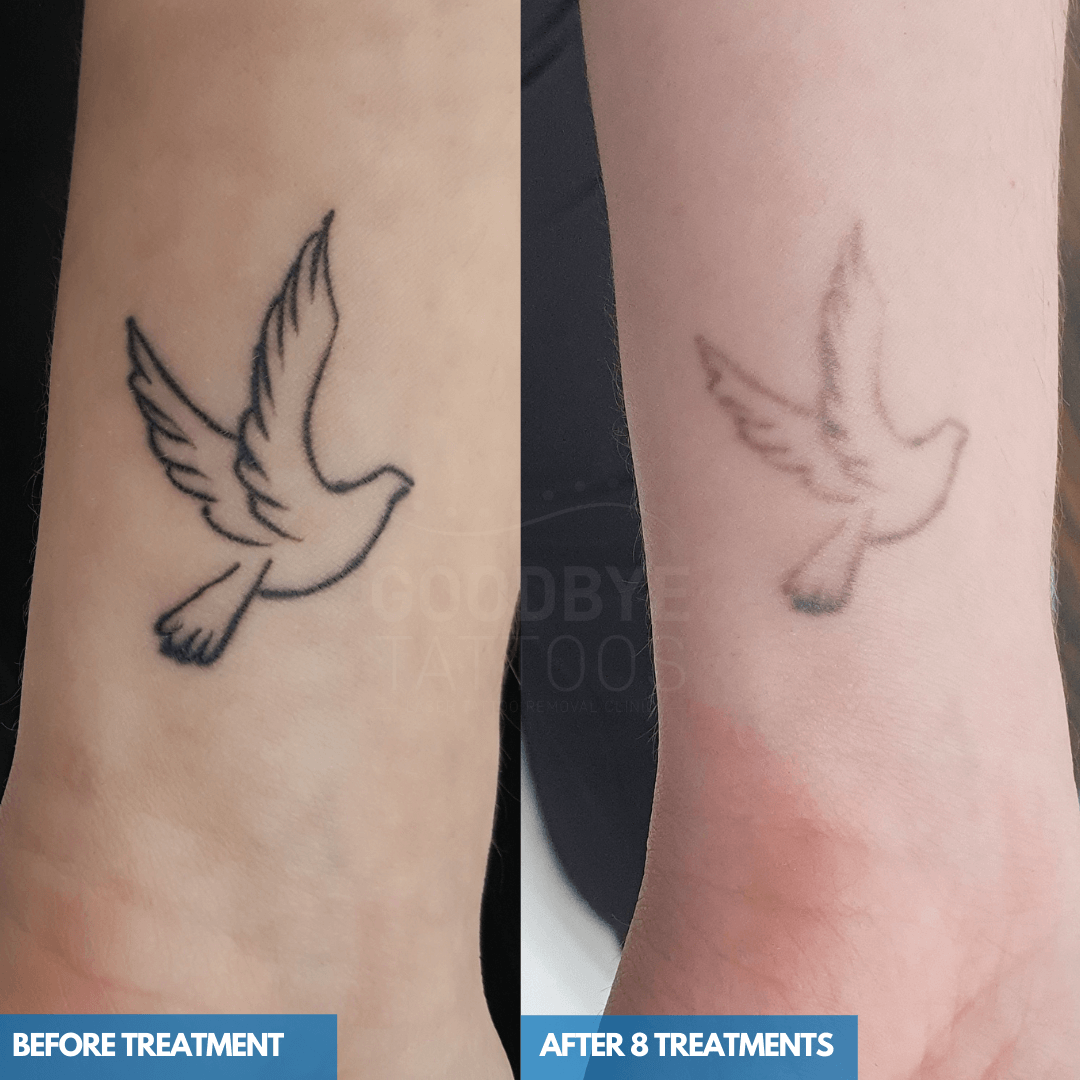 Laser tattoo removal progress photo of a black ink flying bird tattoo on a wrist