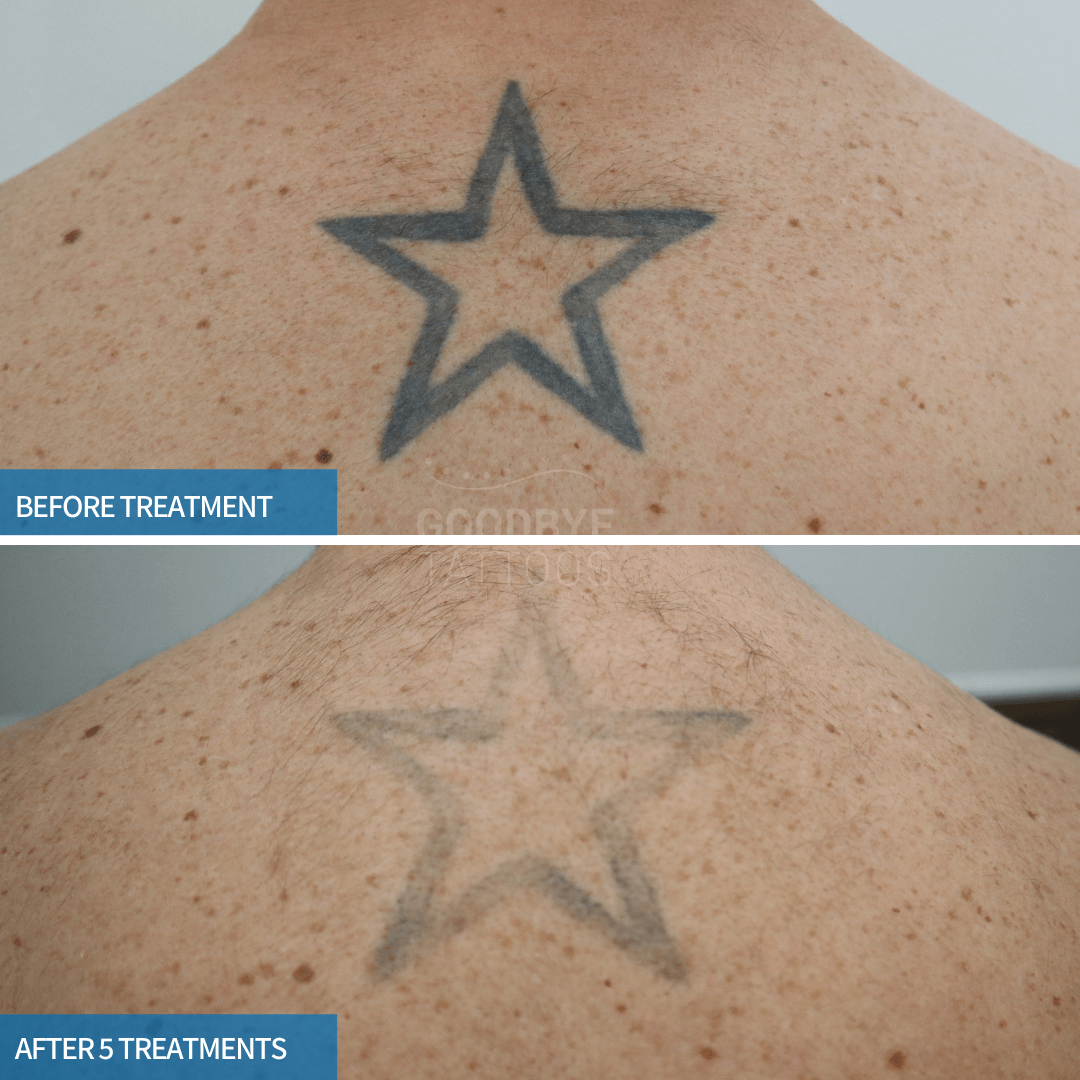 Laser tattoo removal progress photo of a black star on the back