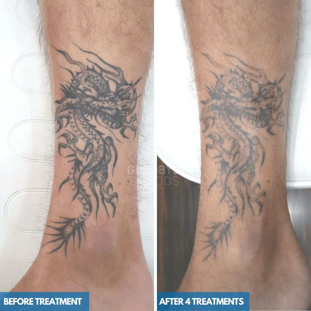 Laser tattoo removal progress photo of a black ink tattoo of a Dragon on the ankle